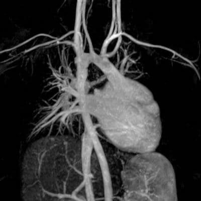 снимок МРТ коронарных сосудов