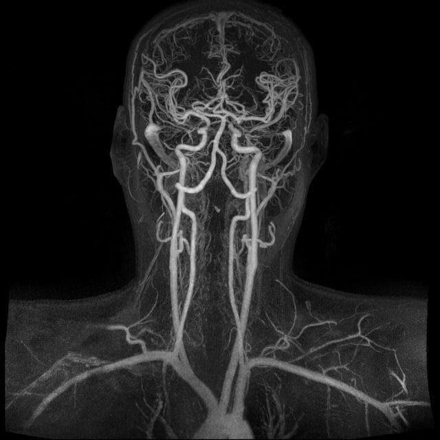 МРТ ангиография головного мозга